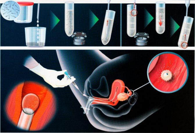 Особенности процедуры эко с использованием донорской яйцеклетки