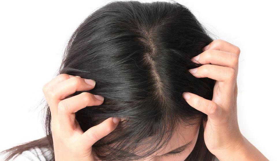 Сухая кожа головы – эффективные советы и хитрости по уходу