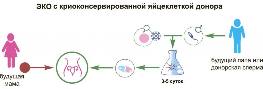 Эко с донорскими эмбрионами в клинике на яузе