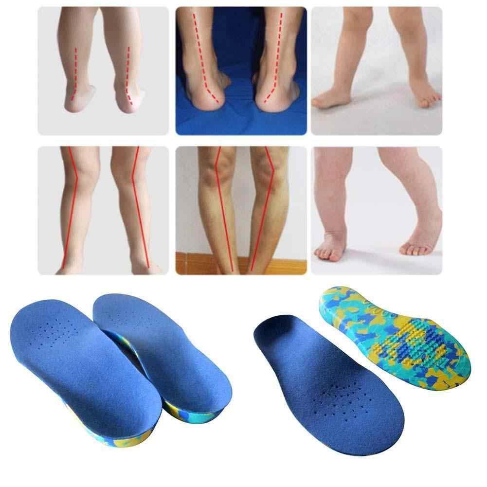 Ортопедические стельки при продольно-поперечном плоскостопии