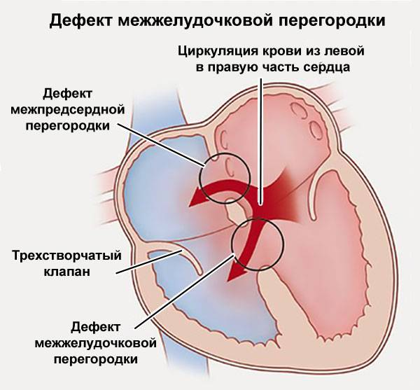 Врожденный и вторичный дефект межпредсердной перегородки у детей: лечение и симптомы