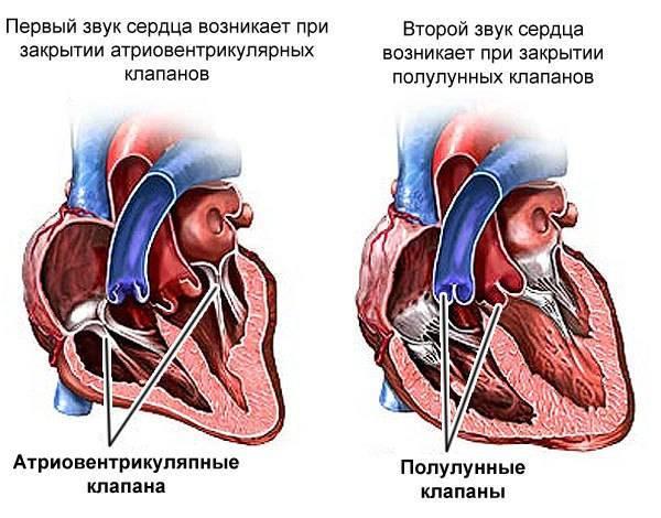 Шумы в сердце у новорожденного ребенка