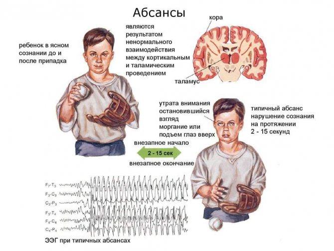 Что такое абсансная эпилепсия? симптомы и виды заболевания.