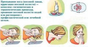 Как промывать нос ребенку: 6 показаний для процедуры, 4 правила промывания