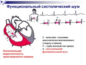Шумы в сердце у новорожденного: причины, опасно ли?