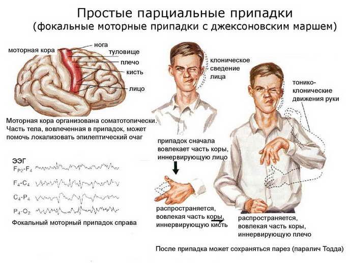 Признаки и симптомы эпилепсии у детей до года
