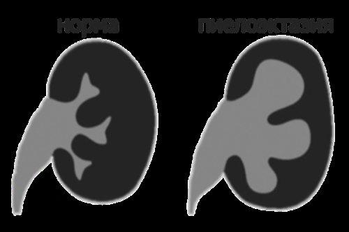 В чем опасность увеличения лоханки почки у плода, обнаруженного во время УЗИ, почему она может быть расширена?
