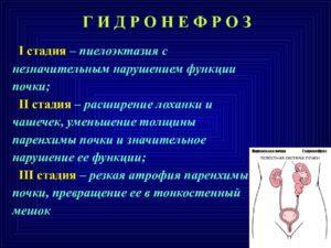 Пиелоэктазия почки справа