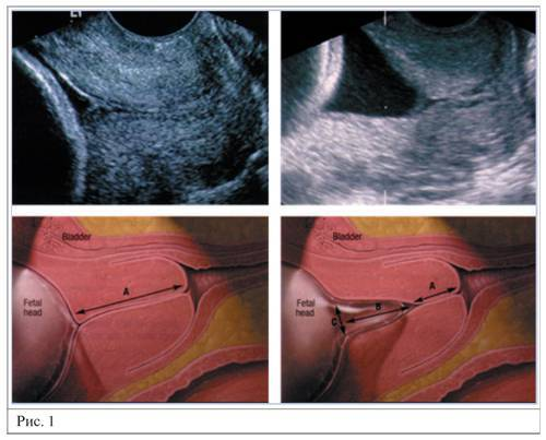 Причины укорочения шейки матки и возможная угроза беременности