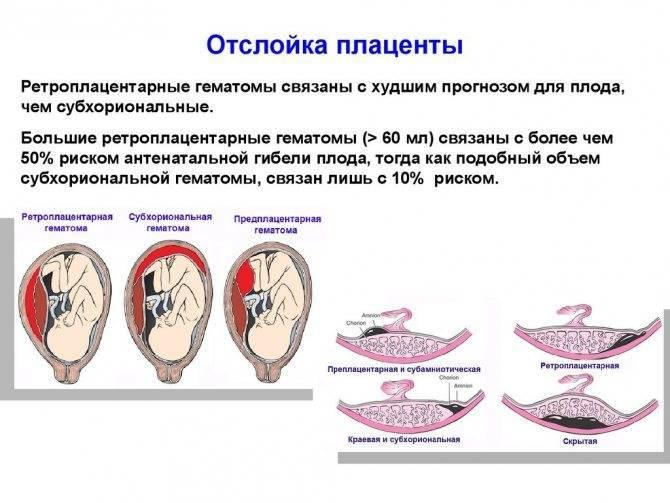 Степень зрелости плаценты по неделям – таблица, норма. когда формируется плацента при беременности?