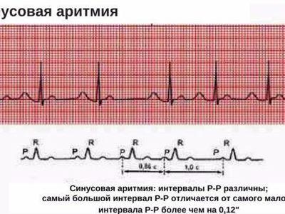Выраженная синусовая аритмия сердца у ребенка: что это такое?