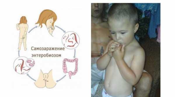 Энтеробиоз у детей - что это, причины, чем опасен, лечение
