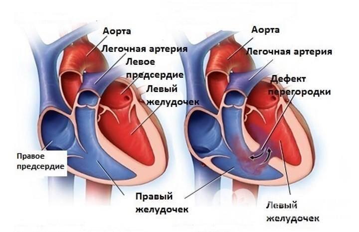 Дефект межпредсердной перегородки сердца у детей и взрослых причины симптомы как лечить — заболевания сердца