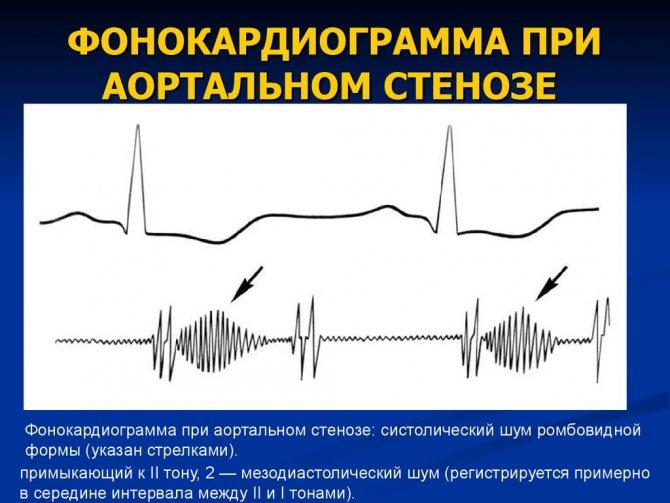 Шум в сердце у детей старше 3-х лет и подростков: причины, диагностика, лечение
