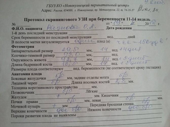 Расшифровка узи при беременности: таблица с результатами, норма и отклонения / mama66.ru