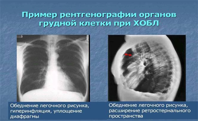 Оправдано ли проведение рентгена ребенку?