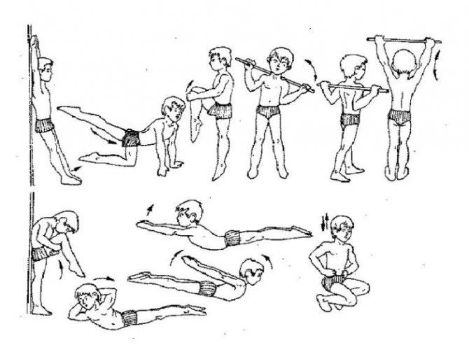Лфк при сколиозе у детей: упражнения, правила, профилактика