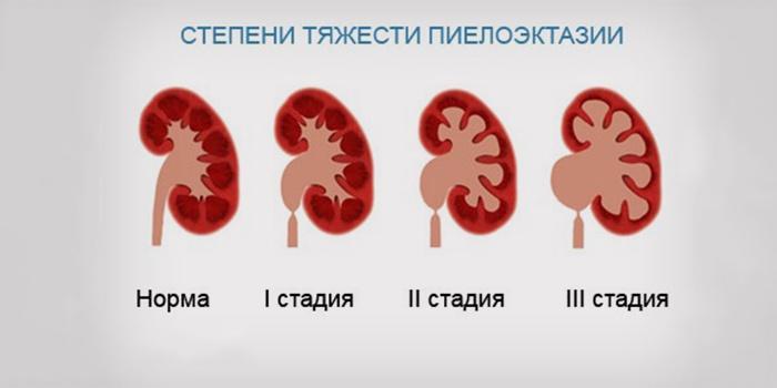 Пиелоэктазия почек у ребенка - что это такое, какие симптомы, как лечить заболевание?