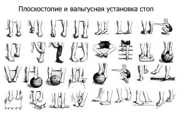 Вальгусная деформация коленных суставов у взрослых и детей: лечение вальгуса нижних конечностей, ортезы для коленей и тазобедренных сочленений