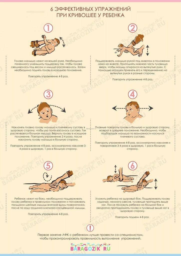 Ребенок плохо держит голову в 3 месяца: причины патологии, как научить ребенка навыку