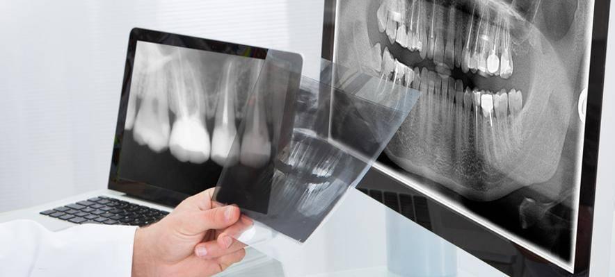 Можно ли делать рентген зуба при беременности (на ранних сроках и поздних)