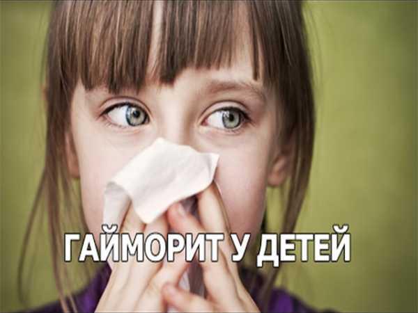Гайморит у детей: симптомы, лечение