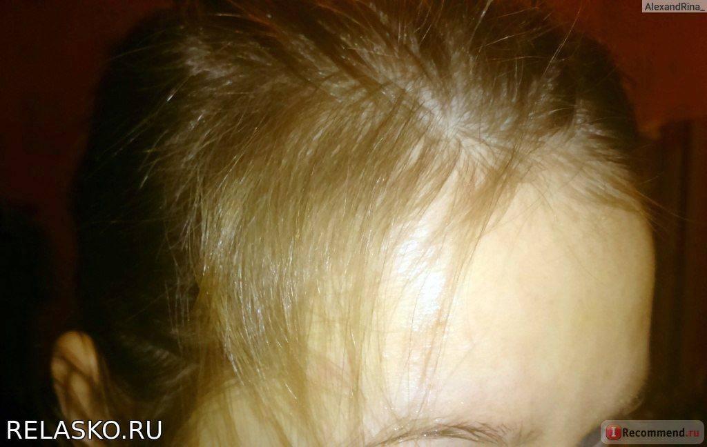 Как восстановить волосы после родов: советы трихолога
