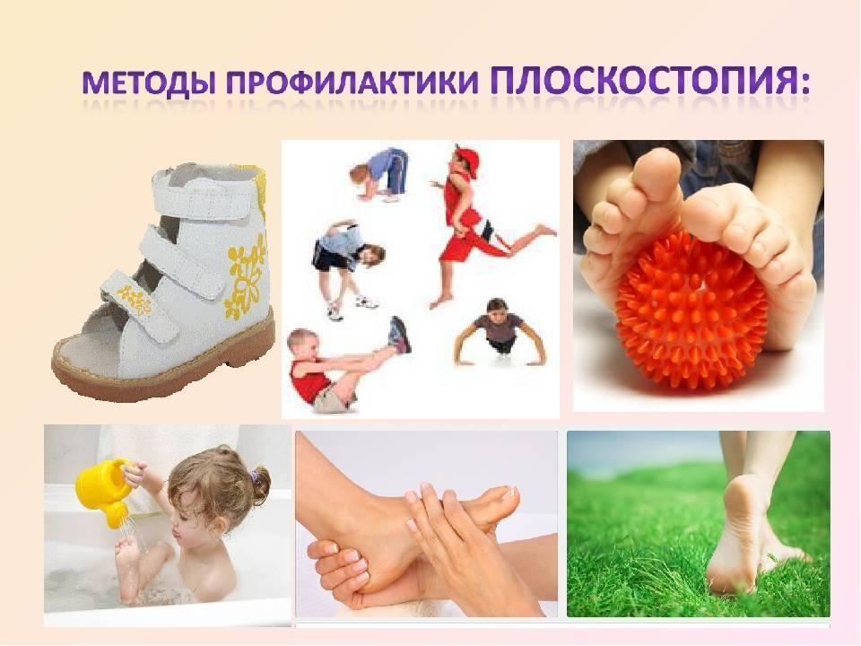 Как лечить плоскостопие у детей в домашних условиях