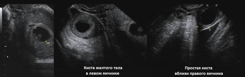 Может ли узи перепутать кисту с беременностью