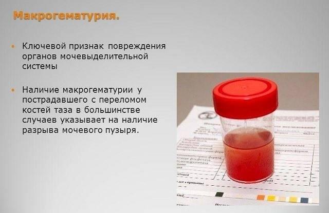 Причины крови в моче у ребенка