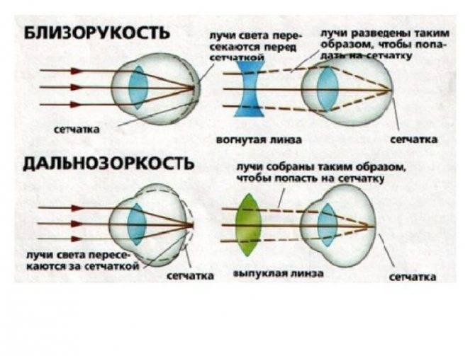 Гиперметропия – что это такое у детей, виды и степени дальнозоркости