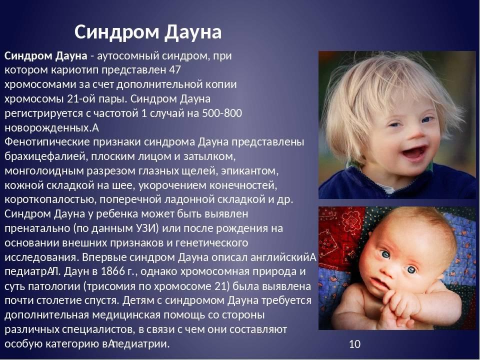 Синдром дауна - признаки у новорожденных