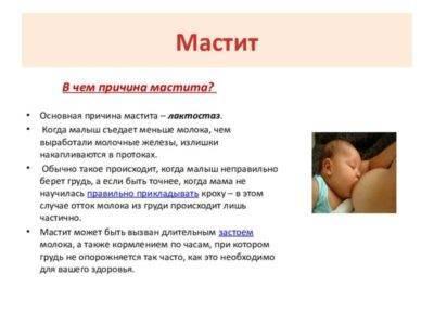 Лактостаз у кормящей матери: симптомы и причины, как предотвратить, как расцедиться