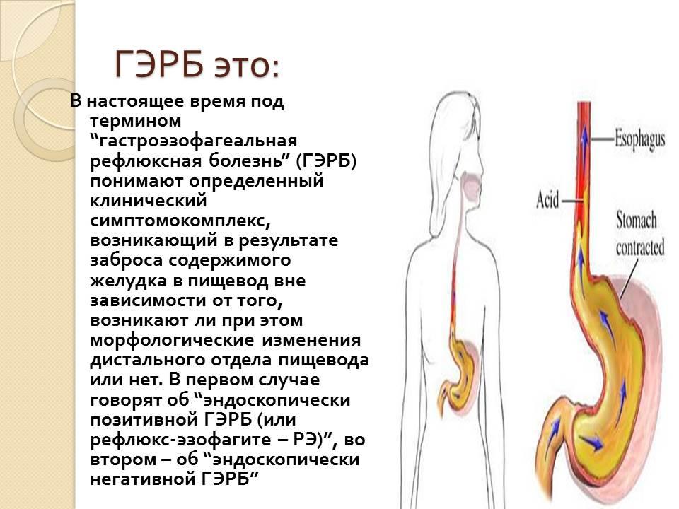 Симптомы и лечение гастроэзофагеального рефлюкса у грудничков и детей