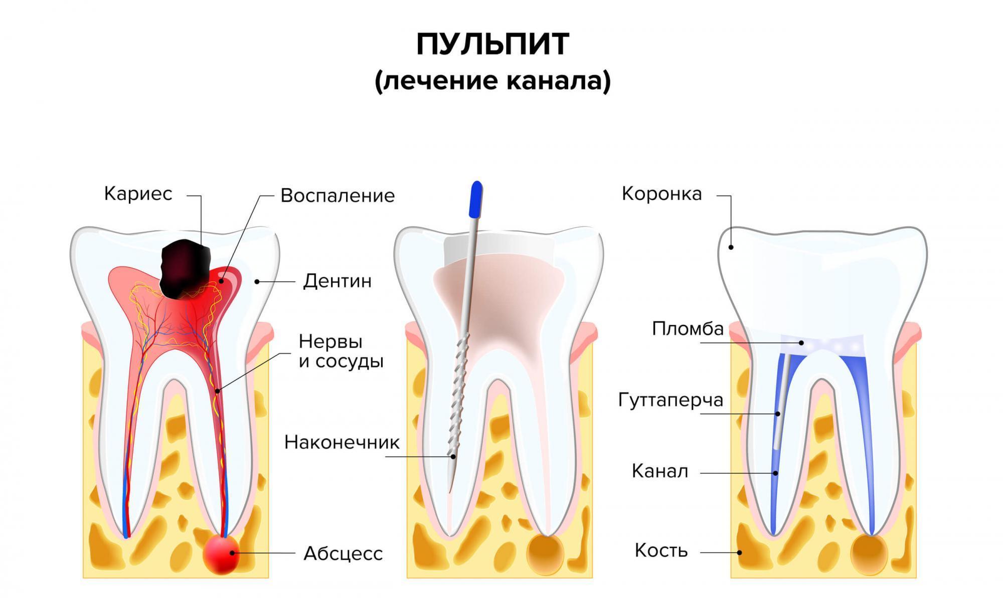Режутся зубки у ребенка: как обезболить, средства для облегчения боли при прорезывании зубов у младенцев