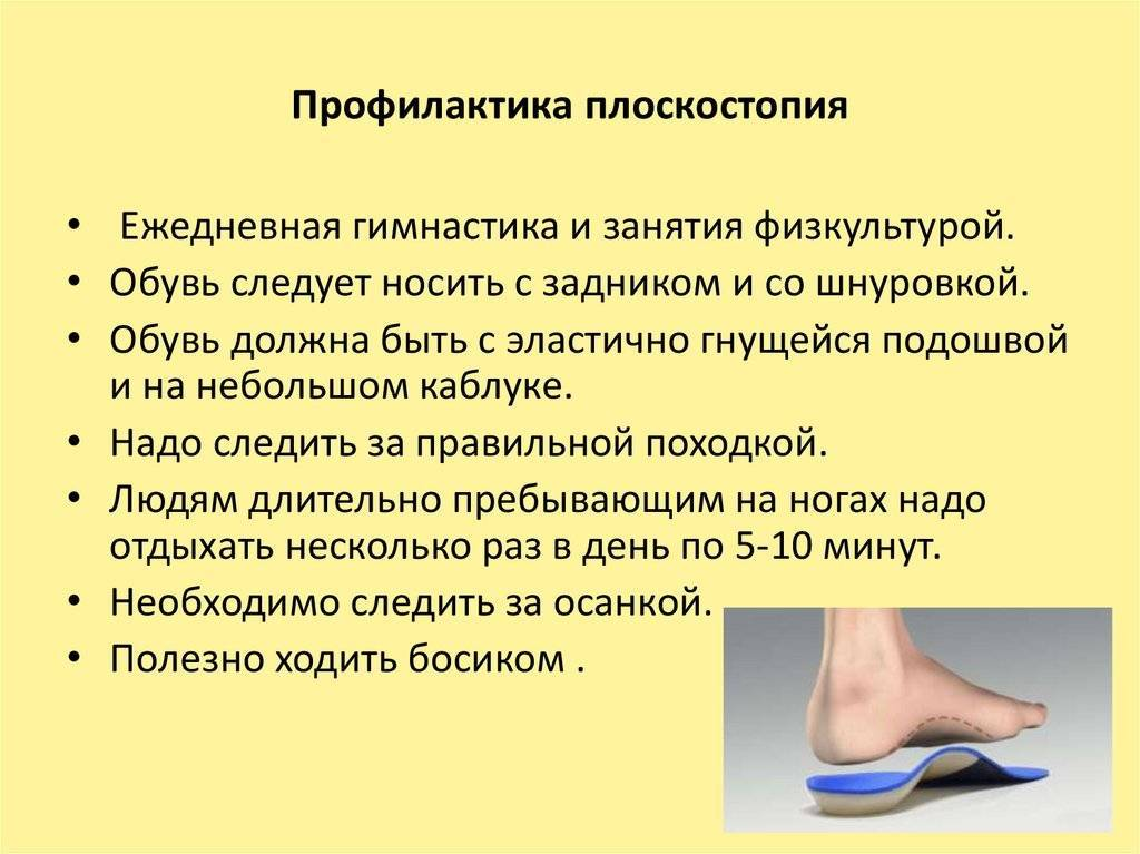 Массаж при плоскостопии у детей в домашних условиях