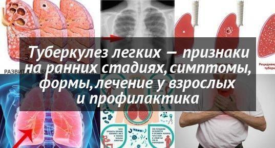 Туберкулез у детей: симптомы и основные причины заболевания, лечение и профилактика, первые признаки