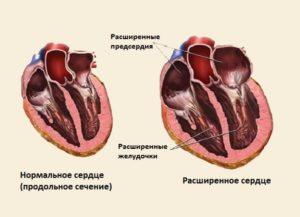 Функциональная и вторичная кардиопатия у детей: причины и симптомы. как выявить диспластическую кардиопатию у детей