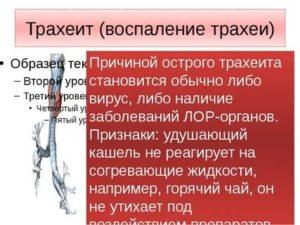 Трахеит у ребенка: симптомы и лечение / mama66.ru