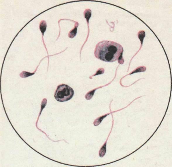 Лецитиновые зерна в спермограмме