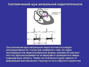 Шумы в сердце у ребенка: причины, у новорожденных, что такое шум в сердце