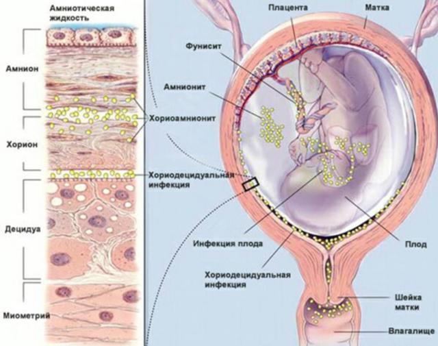 Роды с трихомонадой, влияние при беременности