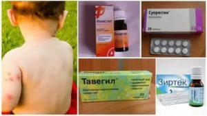 Супрастин при ветрянке – дозировка в таблетках детям
