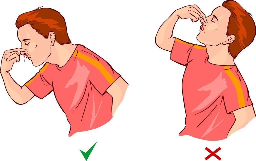 Носовое кровотечение у ребенка: причины и лечение