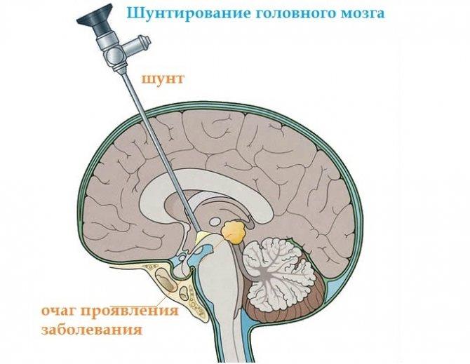 Гидроцефалия у детей: симптомы и лечение