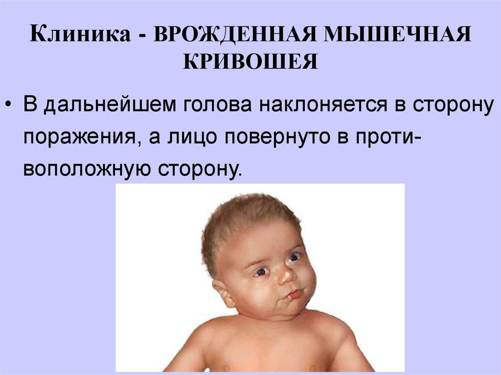 Кривошея у грудничка и новорожденного: признаки, симптомы, фото, лечение