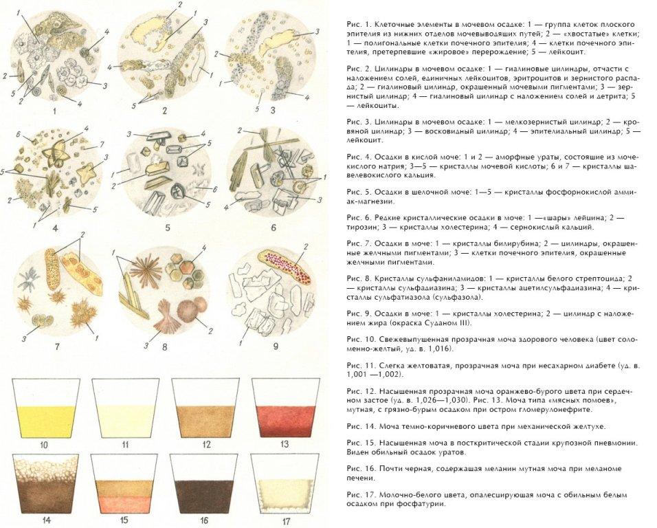 Аморфные фосфаты (кристаллы) в моче у ребенка:причины, лечение и диета   moninomama.ru