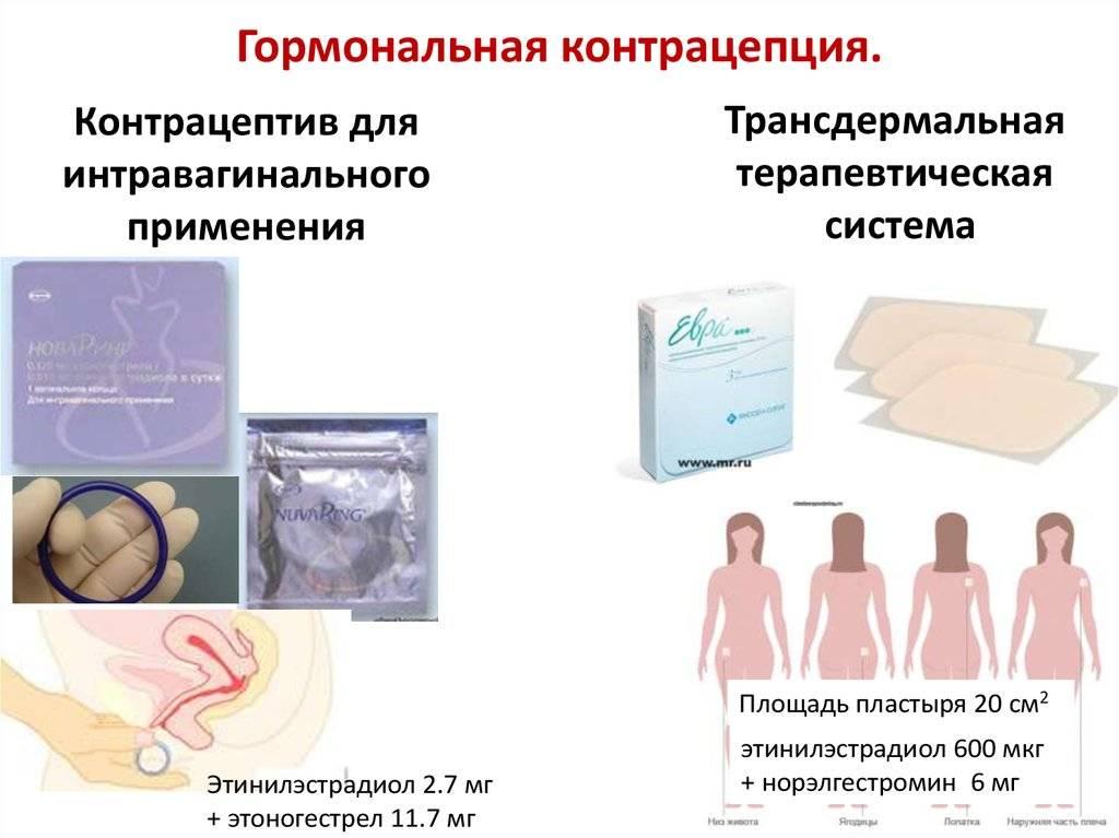 Гормональные контрацептивы: какие бывают, кому подходят