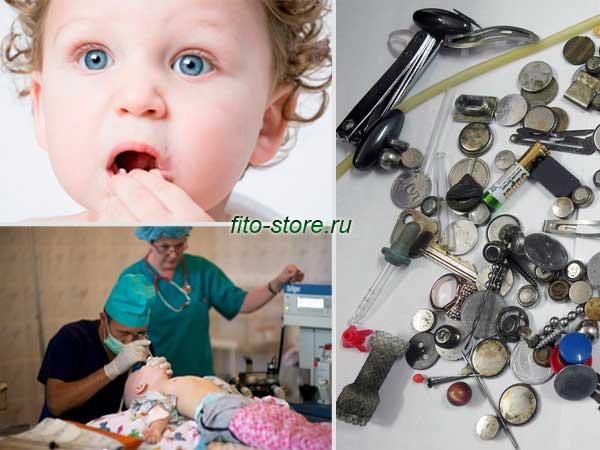 Если ребенок проглотил инородное тело симптомы комаровский