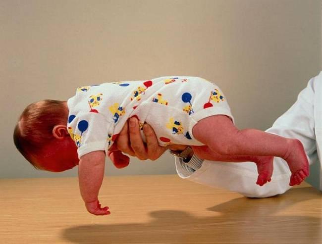 Гипотонус у грудничка: симптомы и лечение, причины слабого мышечного тонуса у младенцев